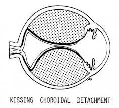 Kissing Choroidal Detachment When The Lobes Of Th