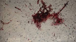 Remove Blood Stain From Carpet by 15 Methods To Get Rid Of Blood Stains