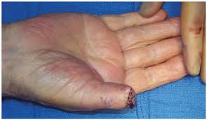 Nail Bed Melanoma by Healthcare Free Full Text Melanoma Of The Hand Current