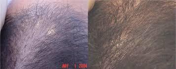 propecia shedding 2 weeks augmentine y lactancia