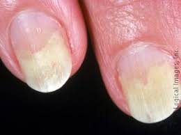 this image displays onycholysis which means lifting of the nail