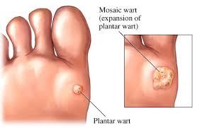 Treatment of Plantar Warts using Cantharidin Performance Podiatry