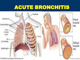 Acute Bronchial Pneumonia – UBETC Homepage