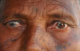 Floppy Iris Syndrome Prolapse