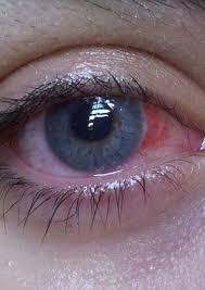 Halloween Prescription Contacts Uk by Halloween Reveller U0027s Novelty Lenses Became Glued To Her Eyeballs