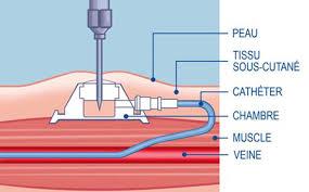 pose d une chambre implantable chimiothérapie une chambre implantable crtt cancérologie