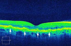 Optical Coherence Tomography Shows The Angioid Streaks As Disruptions In Bruchs Membrane With Elevations Of Retinal Pigment Epithelium