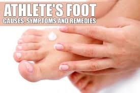 What s the Best Home Remedy for Athlete s Foot NatuRelieved