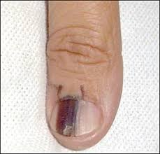 Nail Bed Melanoma by Cutaneous Malignant Melanoma A Primary Care Perspective