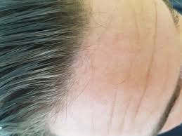 Minoxidil Shedding Phase Pictures by What Do You Guys Think Baldtruthtalk Com
