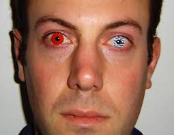 Blue Prescription Halloween Contacts by This Is Why You Shouldn U0027t Wear Those Colored Contact Lenses This