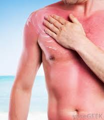 Heat Rash From Tanning Bed by Why Does My Skin Peel After A Sunburn With Pictures