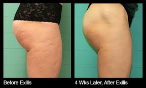 Exilis Body Slimming Before After Photos
