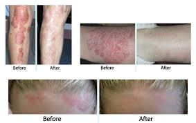 uvb ls for psoriasis l ideas