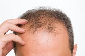 Obat Rambut Botak Yang Tepat