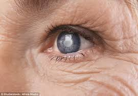 Christmas Tree Cataract Surgery by Cataract Surgery Cuts A Woman U0027s Risk Of Early Death By 60 Daily