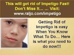 home reme s for impetigo in the nose4