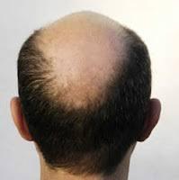 Botak Belakang Dan Depan