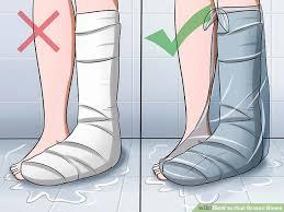 How to Heal Broken Bones 11 Steps with wikiHow