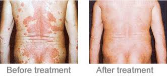 uv l uvb phototherapy equipment for treatment psoriasis