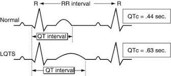 rr interval normal range sads sads foundation