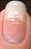 the truth about white spots on the fingernail trauma stress or