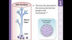 Viral Shedding Herpes Zoster by Shingles Herpes Zoster Animation Michael Freudiger Youtube