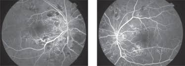 Purtscher Like Retinopathy Fluorescein Angiography Diffusion Of From Arterioles Capillaries And Retinal