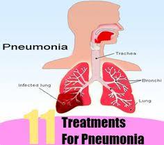 Home Reme s for Pneumonia Treatment