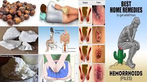 Treatment for Piles Khooni aur Badi Bawaseer Ka ilaj