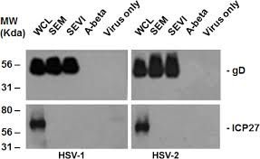 Asymptomatic Viral Shedding Oral Herpes by Viruses Free Full Text Enhancement Of Herpes Simplex Virus