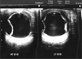 B Scan Ultrasonography Confirming Massive Choroidal Detachment In Both Eyes