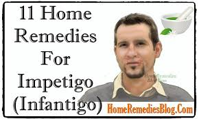 Top 11 Home Reme s To Treat Impetigo Effectively Home Reme s
