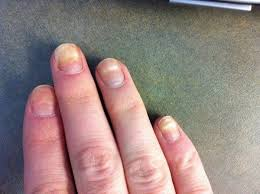 best 25 nail infection ideas on pinterest nail infection