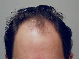 Minoxidil Shedding Phase Pictures by Dr James Vogel Discusses His Follicular Unit Extraction Fue