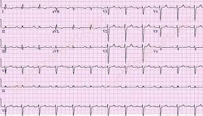 First Degree AV Block ECG 5
