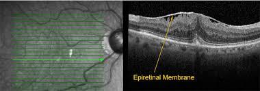 AustinRetina Website ForPatients Headers Epiretinal Membrane Erm2