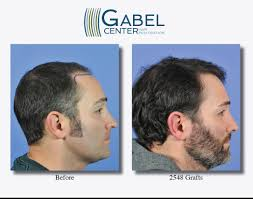 Propecia Shedding After 1 Year by Hair Restoration Answers Page 2 Of 3 Gabel Hair Restoration