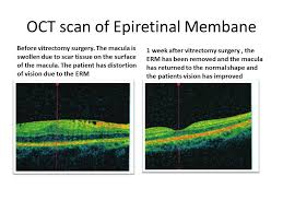 Treatment Of Epiretinal Membrane With Vitrectomy Surgery