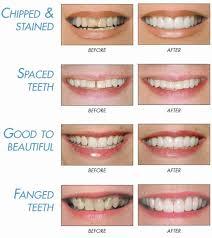 Bonding Moitoso Dental