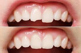 Dental Bonding – Valdosta GA – Advanced Dental Care
