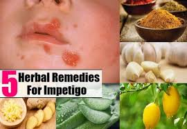 What is Infantigo Rash Home reme s and Treatment