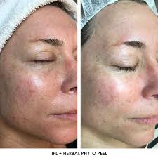 Pumpkin Enzyme Peel Before And After by Face Plus Medispa Sydney Price List Bondi Beach