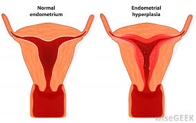 Uterus Lining Shedding All At Once by What Are The Common Causes Of A Heavy Period With Clotting