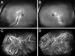 C D Indocyanine Green Angiography Reveals Dilated And Irregular Choroidal Vessels In The Macula Both Eyes