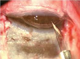 Perforation Of The Descemets Membrane With Iris Prolapse