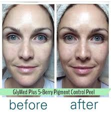 Pumpkin Enzyme Peel Before And After by 18 Best Before U0026 After Results Images On Pinterest Spa