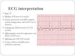 rr interval normal range qrs range 28 images cardiac arrhythmia ppt related keywords