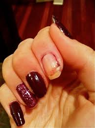 caught my eye how to fix a torn nail