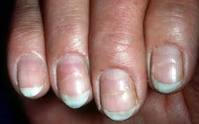 is black streaks in your fingernails a cause for concern md
